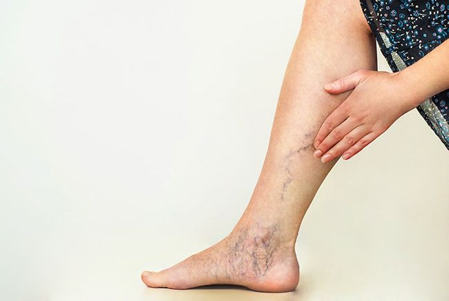 spider-veins-legs_orig